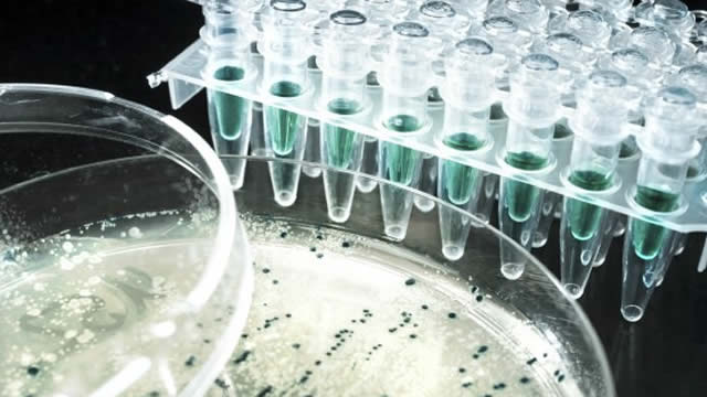 What Makes Eiger BioPharma (EIGR) a New Buy Stock