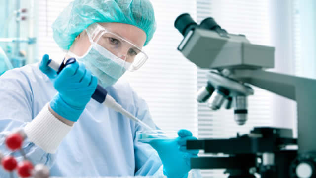 Why Chembio Diagnostics Shares Are Trading Higher Today